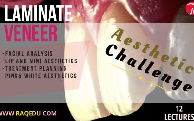 Laminate veneer / Treatment planning-pink and white esthetics