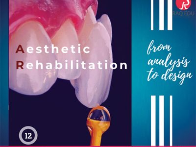 Esthetic rehabilitation