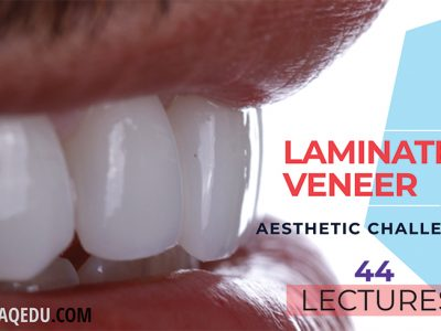 Laminate veneers / Full Package